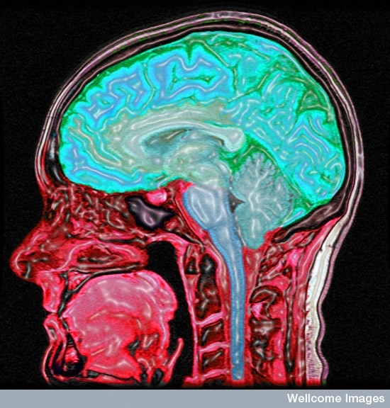 B0005623 Enhanced MRI scan of the head Credit: Mark Lythgoe & Chloe Hutton. Wellcome Images images@wellcome.ac.uk http://images.wellcome.ac.uk Digitally enhanced MRI of the human head showing the brain and spinal cord in blue/green and the other tissues in red and pink. Magnetic resonance imaging 2004 Published: - Copyrighted work available under Creative Commons by-nc-nd 2.0 UK, see http://images.wellcome.ac.uk/indexplus/page/Prices.html